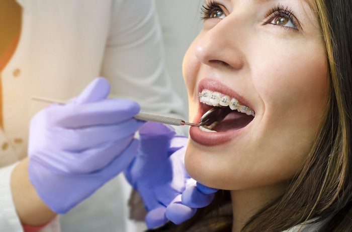 How Do-It-Yourself Braces Can Leave Gaps In Treatment